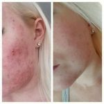 wat helpt bij acne | Wat helpt bij puistjes |
