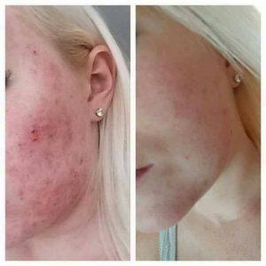 wat helpt bij acne   Wat helpt bij puistjes  